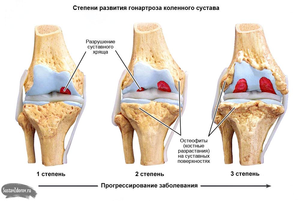 Гонартроз коленного сустава 1 степени: причины, симптомы и лечение