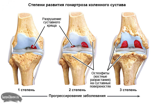 стадии развития гонартроза коленного сустава