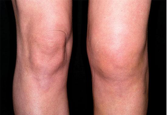 отек колена при гонартрозе