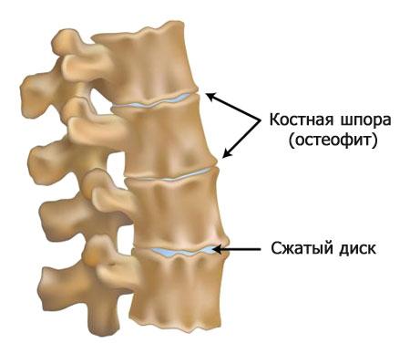 позвонки с остеофитами