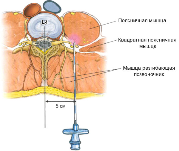 лечение остеохондроза грудного отдела позвоночника лекарства