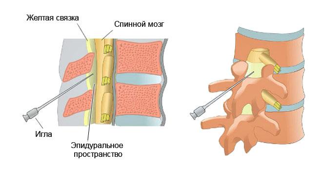 схема эпидуральной блокады