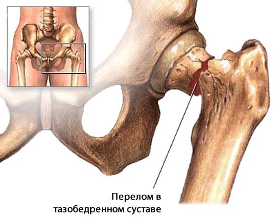 перелом в тазобедренном суставе