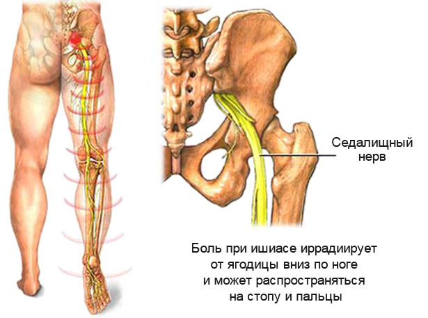 боль в ноге и в тазобедренном суставе при остеохондрозе