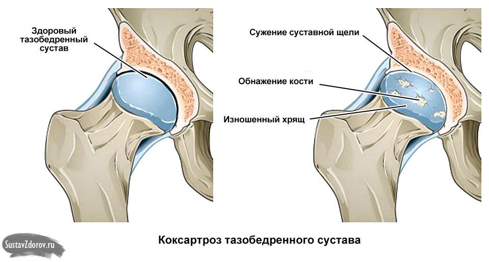 боль в бедренном суставе отдающая в ногу