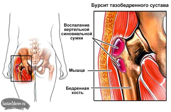 тазобедренные суставы чем лечить народные средства
