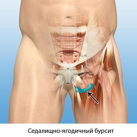 Боль в левом тазобедренном суставе поясница замена коленного сустава харьков
