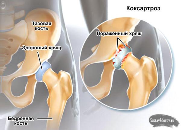 тазобедренный сустав в норме и коксартроз