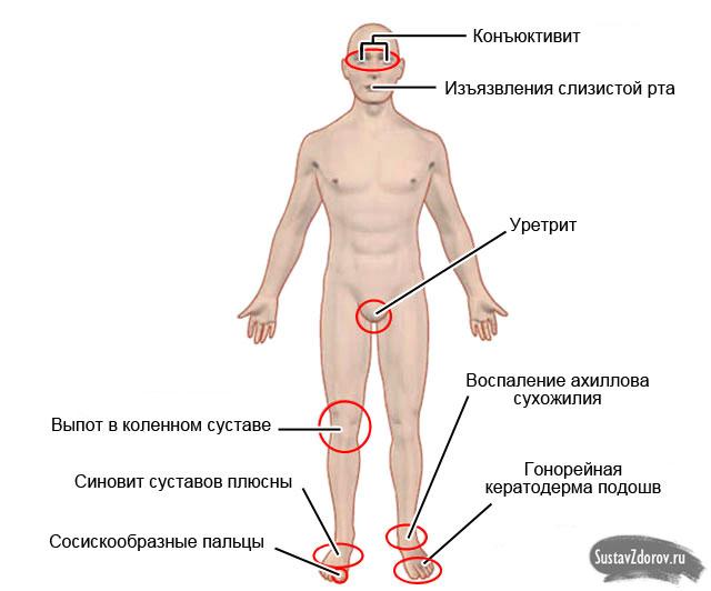 возможные симптомы, сопровождающие реактивный артрит