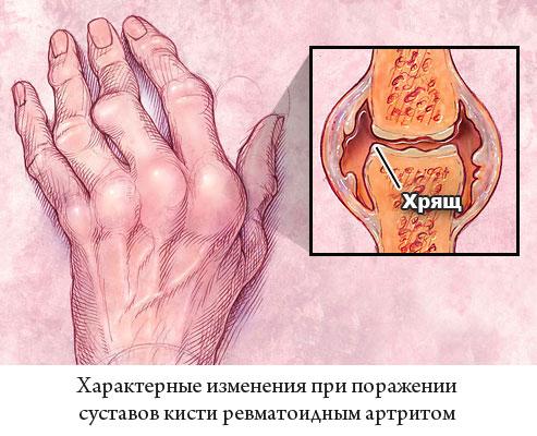 характерные изменения при поражении суставов кисти ревматоидным артритом