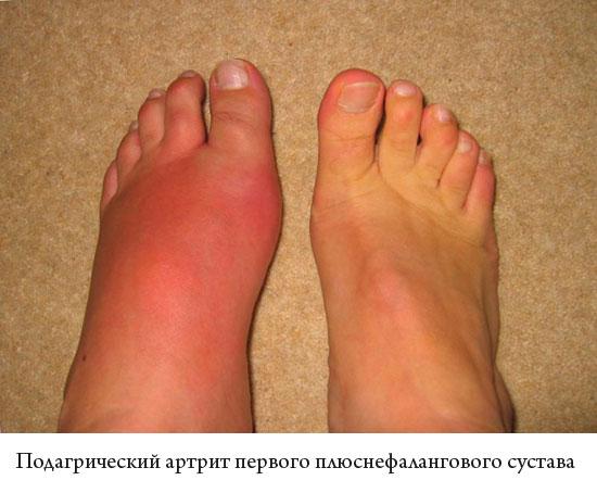 подагрический артрит первого плюснефалангового сустава