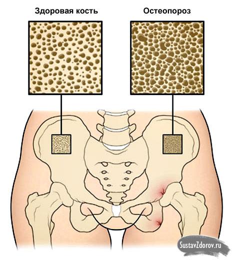 кость в норме и остеопороз