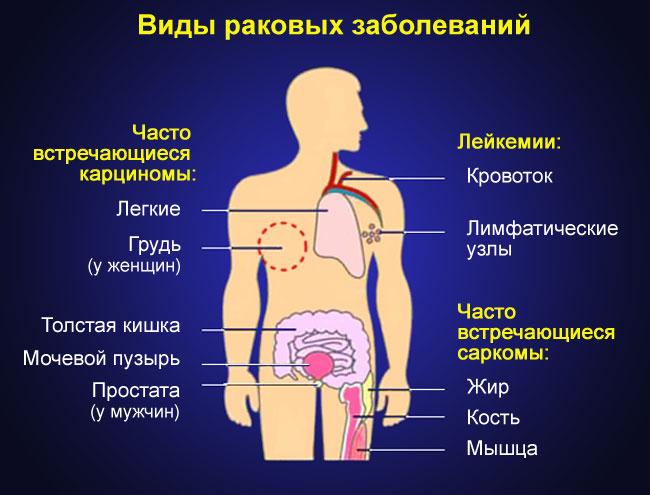 виды раковых заболеваний
