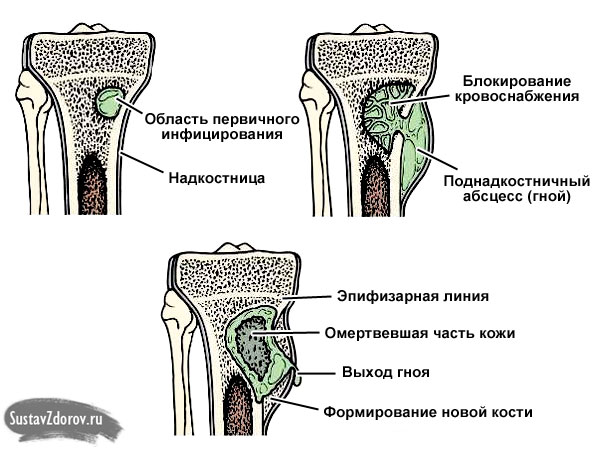 процесс развития остеомиелита в кости