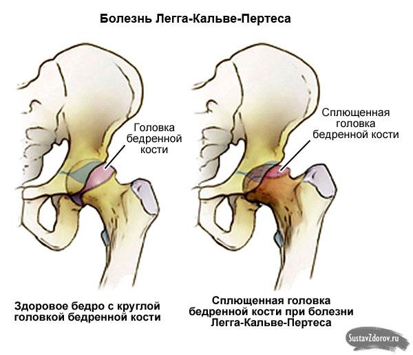 болезнь Легга-Кальве-Пертеса поражает головку бедра
