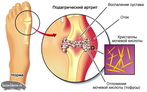 подагрический артрит сустава большого пальца стопы