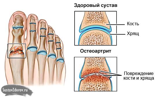 остеоартрит сустава большого пальца стопы