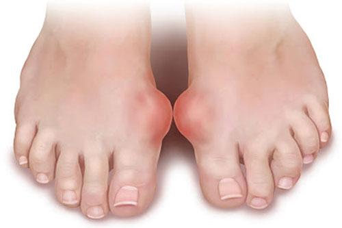 Воспаление сустава на пальце ноги лечение цена операции по замене тазобедренного сустава в украине