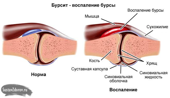 здоровый сустав и пораженный бурситом