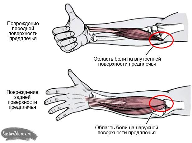 Локоть болит при сгибании эндопротезирование локтевого сустава украина