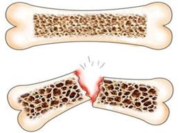 ломкость костей при остеопорозе