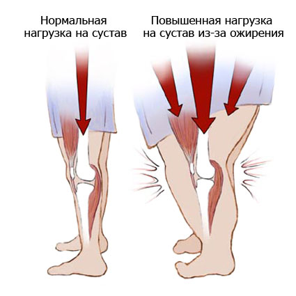 Изображение - Остеоартроз коленного сустава 1 степени 247-2