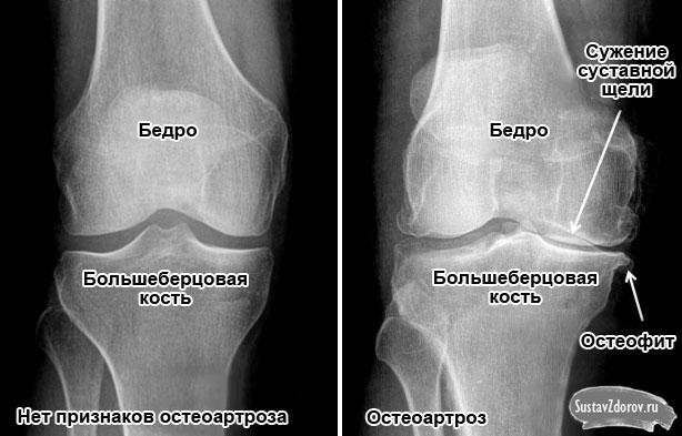 сужение суставной щели при остеоартрозе 1 степени