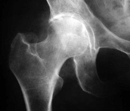 Изображение - Инвалидность при артрозе тазобедренного сустава 250-3