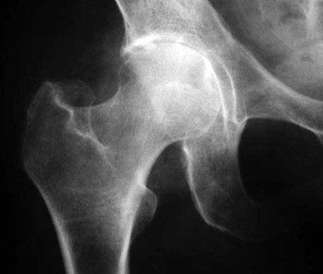 Двухсторонний коксартроз тазобедренного сустава 2 степени инвалидность мазь при боли в суставах рук и ног купить