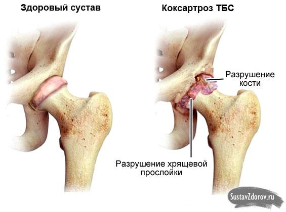 Двухсторонний коксартроз 1-2 степени диагностика и лечение