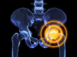 Симптомы и лечение коксартроза 2 степени тазобедренного сустава
