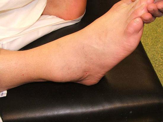увеличение голеностопа при синовите
