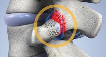 остеофиты и воспаление фасеточных суставов