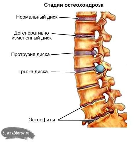 стадии поражения позвоночного столба при остеохондрозе