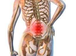 Симптомы и лечение спондилоартроза пояснично-крестцового отдела позвоночника