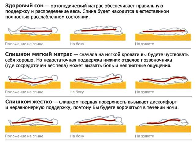 сравнение положения позвоночника во время сна на ортопедическом ы других матрасах