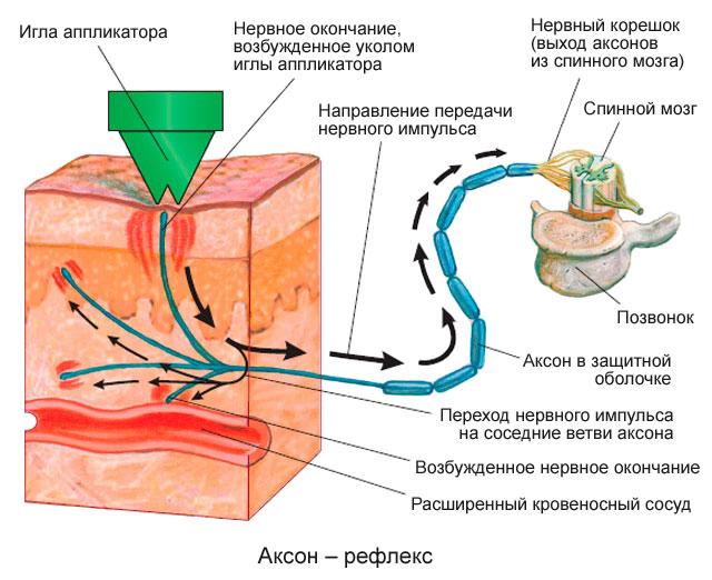Как правильно прикладывать листья хрена при шейном остеохондрозе
