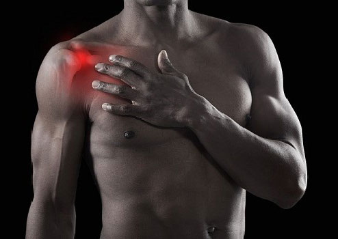 Болит левое плечо и неподнимается рука