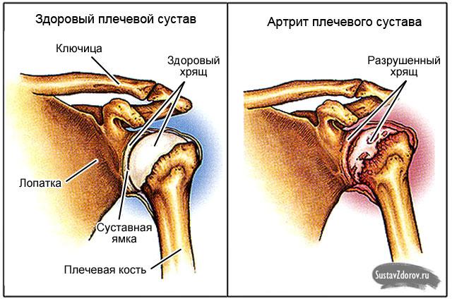 бандаж на коленный сустав prolife orto ark2102b