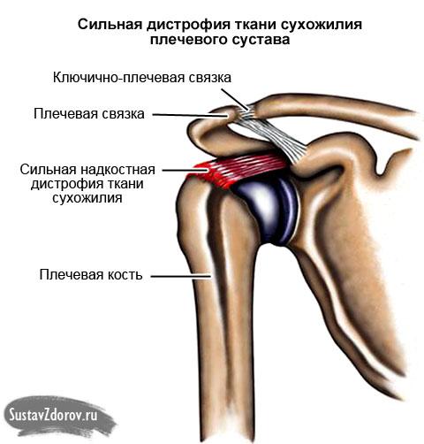 Болит плечевой сустав левой руки при ее поднятии какой тренажер лучше использовать при протезе коленного сустава