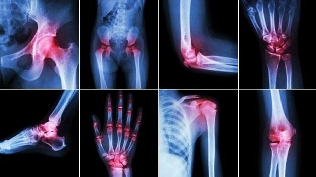 Болят суставы рук и ног – что делать?