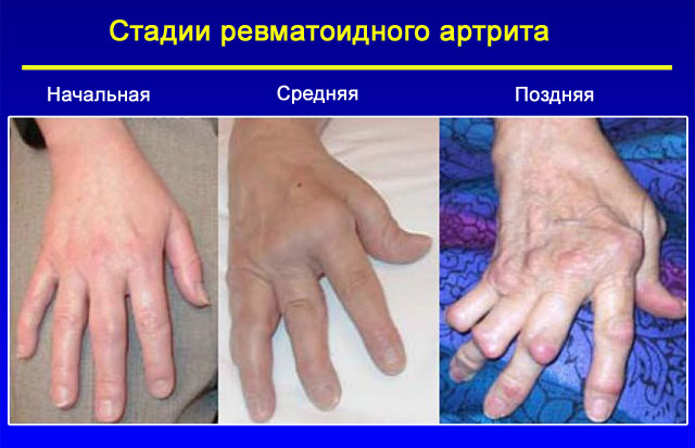 Изображение - Ревматоидные заболевания суставов 30-01