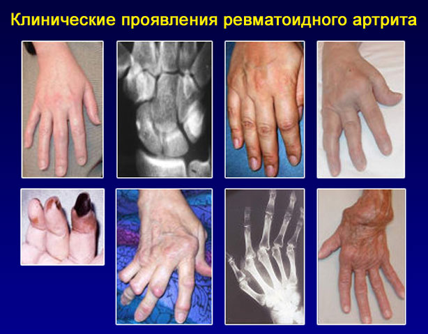 проявления ревматоидного артрита