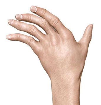 симптом плавника моржа при ревматоидном артрите