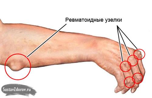 Изображение - Ревматоидные заболевания суставов 30-06
