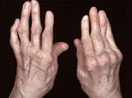 руки, пораженные ревматоидным артритом
