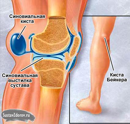 При ходьбе болит колено чуть припухло сбоку суставной головки и суставного диска боль и стук