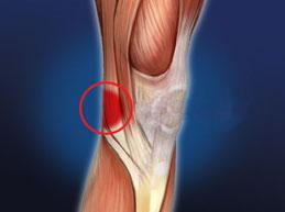 Болит колено с внутренней стороны: причины, возможные болезни, лечение