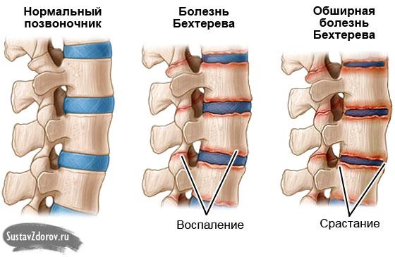 Спондилоартрит причины симптомы диагностика и лечение