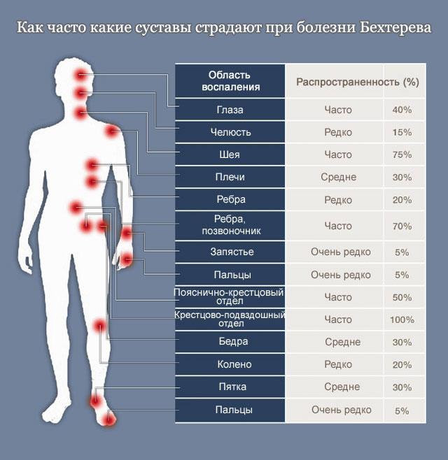 частота поражения разных суставов при болезни Бехтерева
